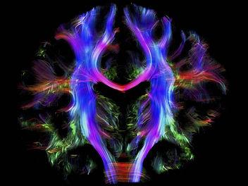 cover-r4x3w1000-58176ad3b2206-cerveau-vo