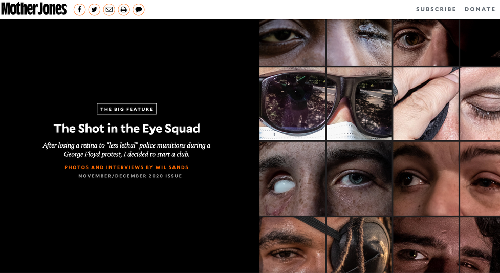 The Shot in The Eye Squad