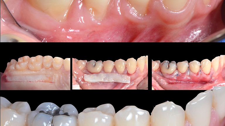 Module 2: La chirurgie parodontale