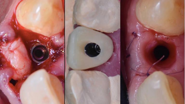 2021 Module 3 : Chirurgie et prothèse implantaire de petite étendue