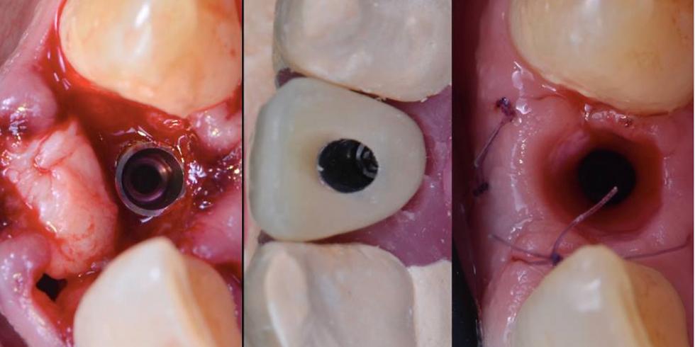 Module 3: Chirurgie et prothèse implantaire de petite étendue