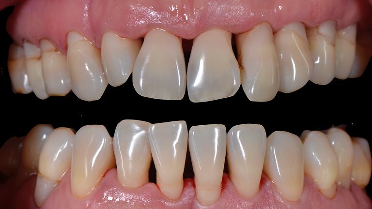 Module 1: prise en charge parodontale