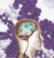 המוח והחלבונים מתחילים לתקשר בזכות הפרפל קאפס Purplecaps