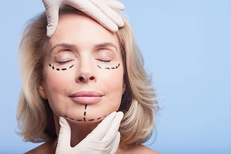 Eyelid Surgery Markings