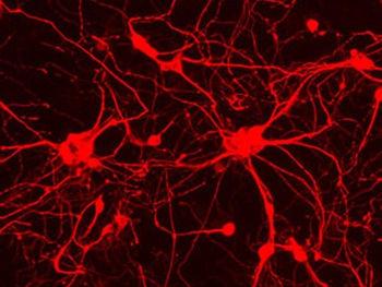 Experts excited by brain 'wonder-drug'