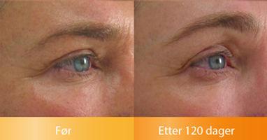 Ulthera Ultherapy i Oslo resultater løfter oppstrammer øyenbrynene før og etter bilder