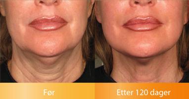 Ulthera Ultherapy resultater løfter oppstrammer halsen før og etter bilder