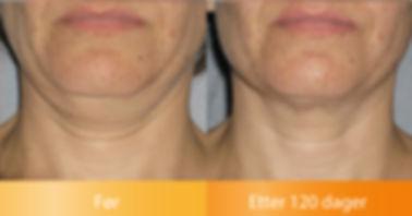 Ulthera Ultherapy resultater løfter halsen før og etter bilder