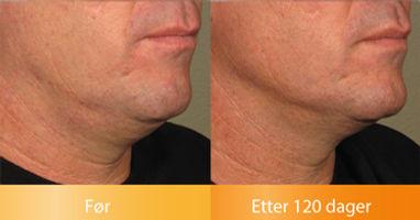 Ulthera Ultherapy resultater løfter under haken før og etter bilder