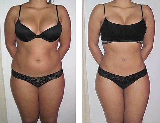 LipoHIFU bilder før og etter,fettsging med fokusert ultralyd