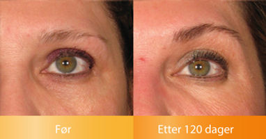 Ulthera Ultherapy resultater løfter oppstrammer øyenbrynene før og etter bilder