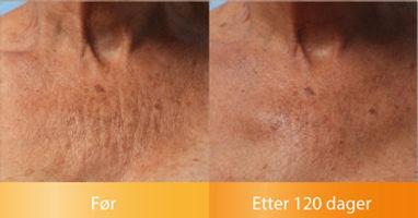 Ulthera Ultherapy resultater Glatter ut halsutringningen før og etter bilder