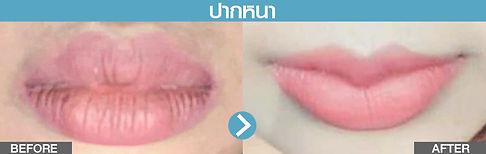 ปากหนา.jpg