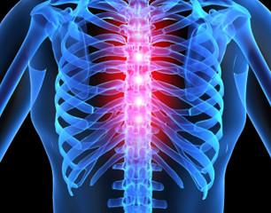 Kilenc tévhit a gerincfájdalomról