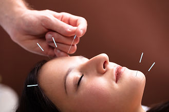 bigstock-Woman-Receiving-Acupuncture-Tr-