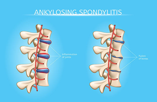 bigstock-Ankylosing-Spondylitis-Realist-