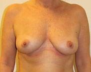 BFO lipoinjektion efter.jpg