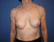 Erstatning_af_brystimplantat_med_eget_fe