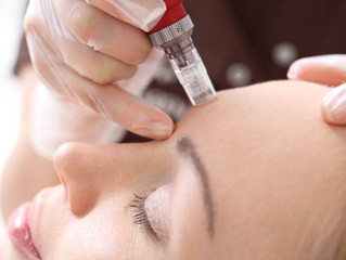 What is Nano-Infusion and Micro-Needling?