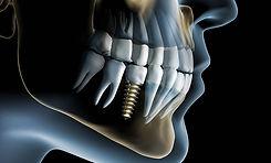 implantologie_icon.jpg