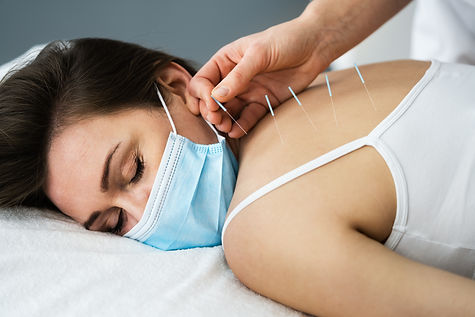 Acupuncture Massage Therapy Treatment In