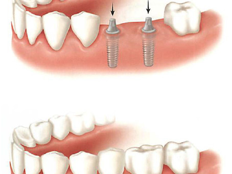 Replacing Teeth