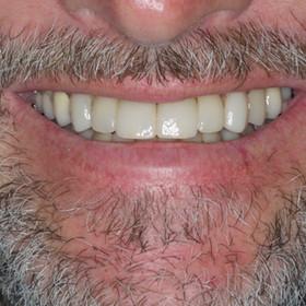 After a full dental rehabilitation