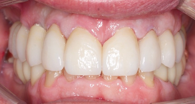 Implant and periodontal surgery were don