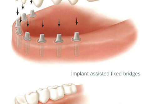 Replacing All Teeth