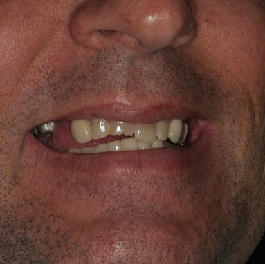 Before Implant