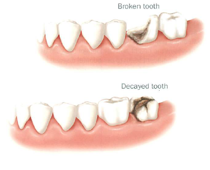 What Causes Tooth Loss?