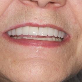 Before esthetic implant restoration