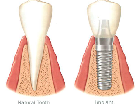 Introduction to Dental Implants