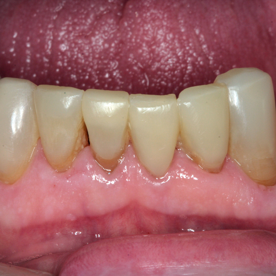 lower incisors after bonding