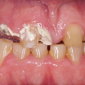 Many missing teeth and crowns falling of