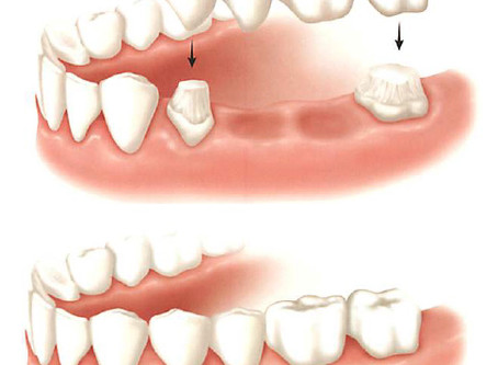 Replacing a Single Tooth