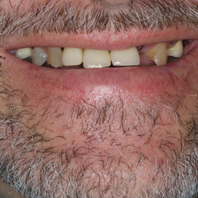 Before a full dental rehabilitation