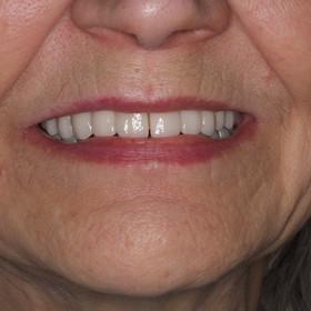 Esthetic implant restoration