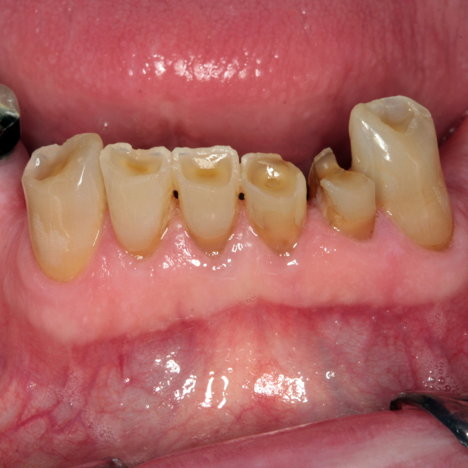 Lower incisors before bonding