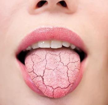 Xerostomia: Dry Mouth.