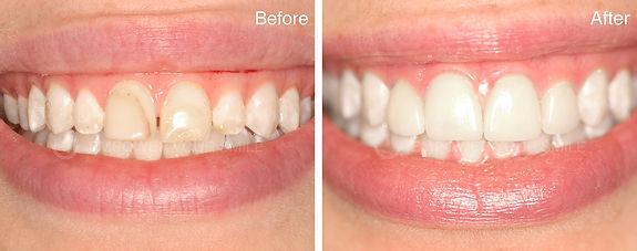 dental laminates before and after