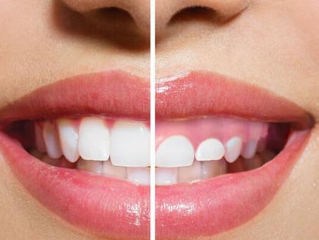 Do You Have Gummy Smile?