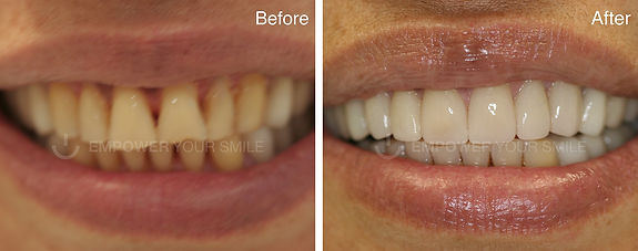 full-mouth reconstruction before and after