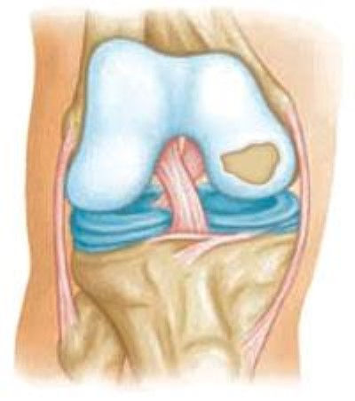articular cartilage.jpg