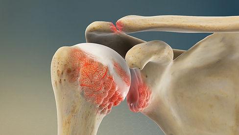 shoulder osteoarthritis.jpg