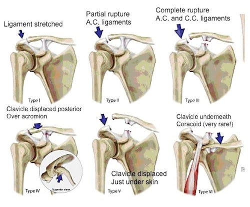 AC JOINT SEPARATIONS TYPES.jpg