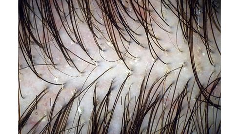 scalp pic hair loss .png