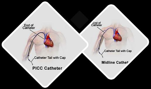 PICC vs Midline