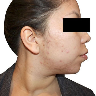 best, fast, most comfortable acne treatment: before and after