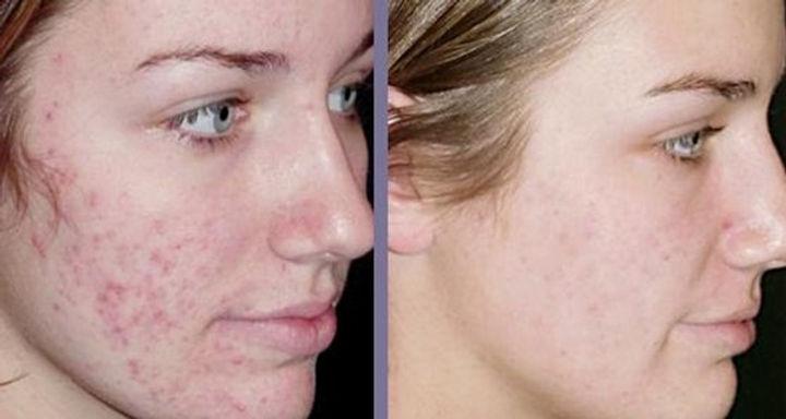 Estomper les cicactrices d'acné